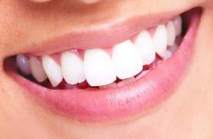 Limpieza dental + revisión + blanqueamiento led